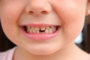 sognare perdere un dente