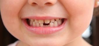 Sognare di perdere un dente